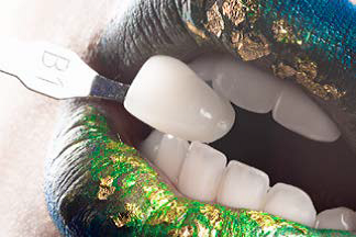 New Boutique Tooth Whitening