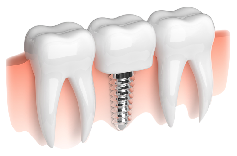 Book your free implant consultation